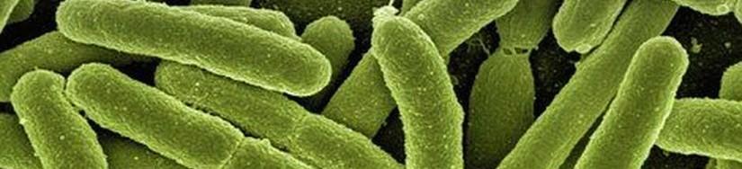 Visentia Legionella banner image